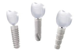impiani dentali tipologie e misure