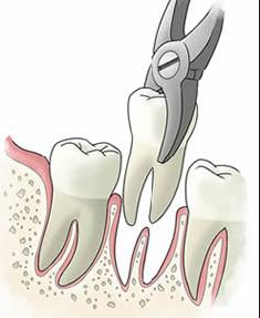 estrazione dei denti
