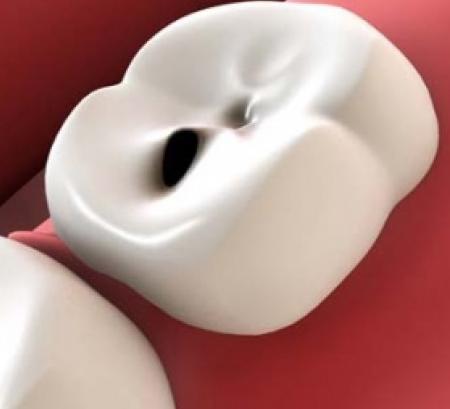 rigenerazione dentina