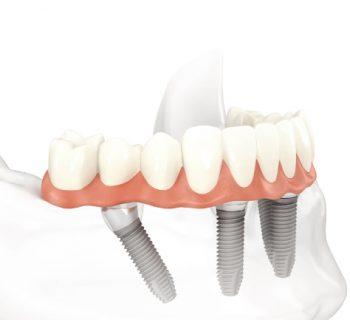 implantologia a Roma