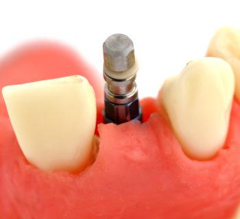 frattura di un impianto dentale